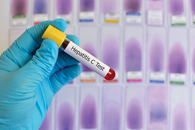 Hepatitis C virus test