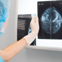 UMMC Offers Free Breast and Cervical Cancer Screenings for Uninsured/ Underserved Women